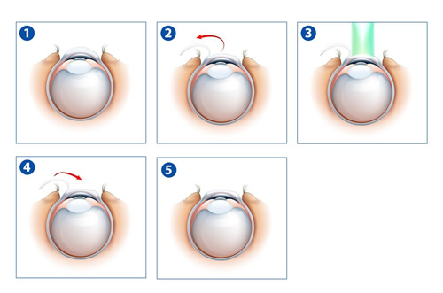 Cirurgia a Laser